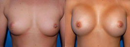 breast-implants-ba3.jpg