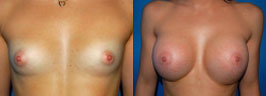 breast-implants-ba1.jpg