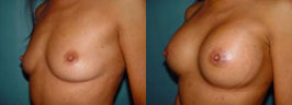 breast-implants-ba2.jpg