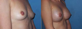 breast-implants-ba4.jpg